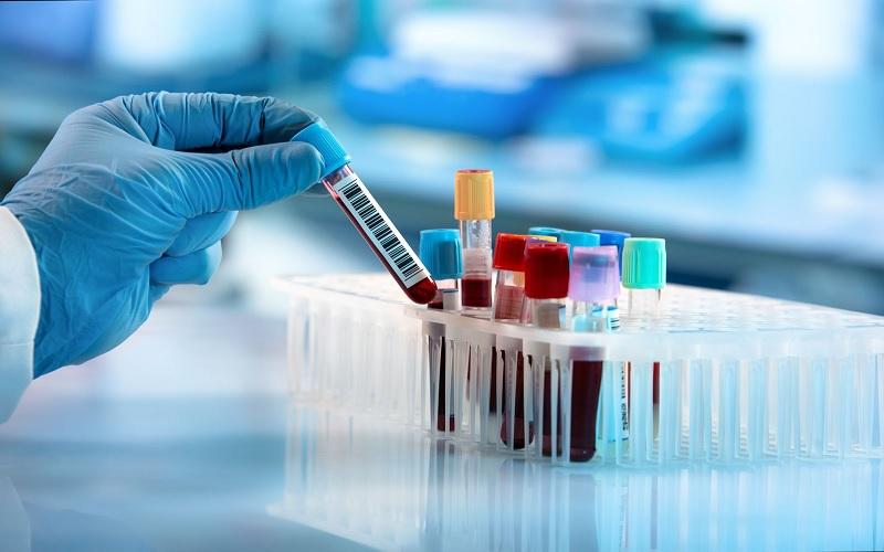 ngành Kỹ thuật xét nghiệm y học